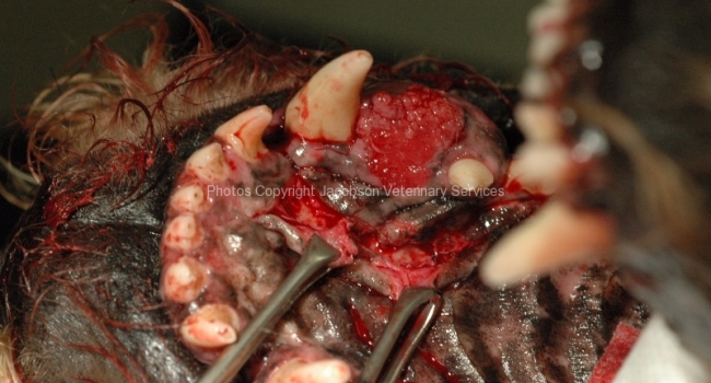 8-partial-maxillectomy